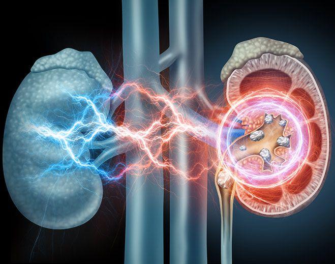shock wave lithotripsy